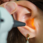 HEARING LOSS COMPENSATION CLAIMS